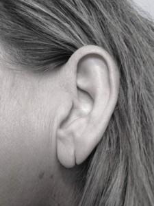 øreførsvhv
